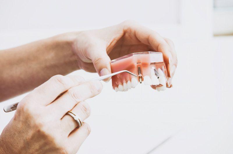 Choosing a Dental Insurance Plan